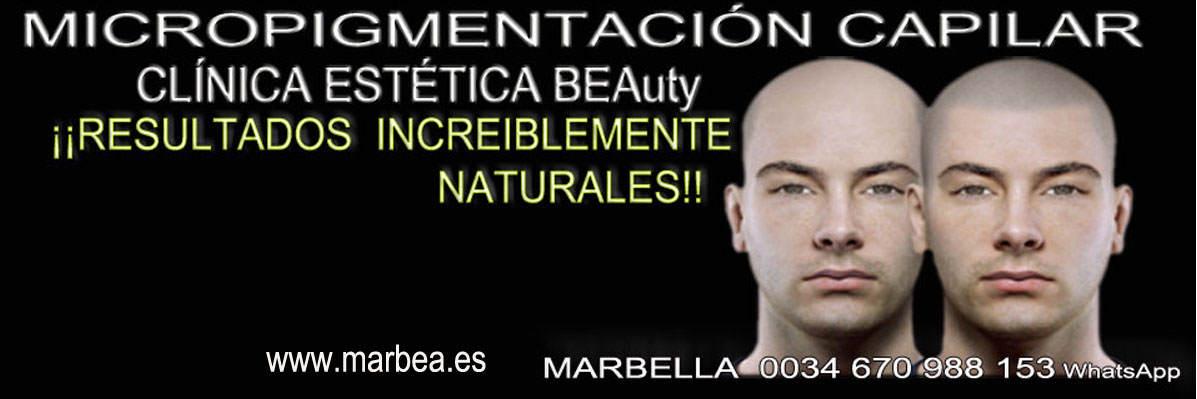 CICATRICES EN EL CUERO CABELLUDO TRATAMIENTO CLINICA ESTÉTICA micropigmentación capilar Málaga y Marbella y maquillaje permanente en marbella