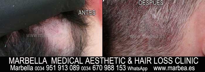 tratamiento caida del pelo hombres Marbella Marbella Clínica Estética y tratamiento de la alopecia areata Marbella: Te proponemos la mayor calidad de servicios