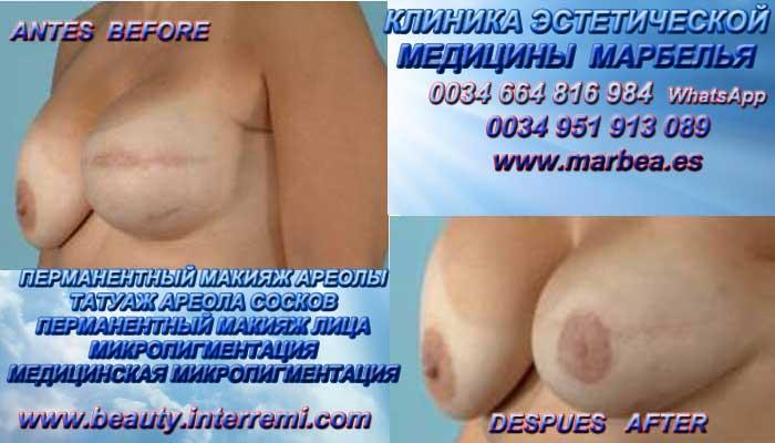 перманентный макияж ареолы груди клиникa эстетической медицины медицинской микропигментации, перманентного макияжа лица и татуажa ореолы груди марбелья