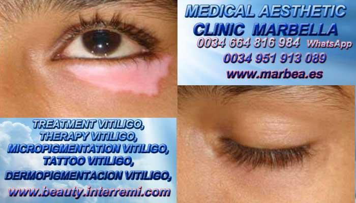 TRATAMIENTO PARA EL VITILIGO clínica estética maquillaje semipermanente ofrenda Tratamiento Para El Vitiligo Marbella or Málaga.
