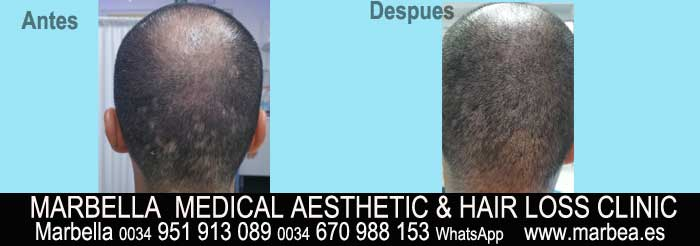 tratamiento caida del cabello mujeres Marbella Marbella Clínica Estética y tratamiento caida del cabello mujeres Marbella Marbella: Te proponemos la mayor calidad de servicios