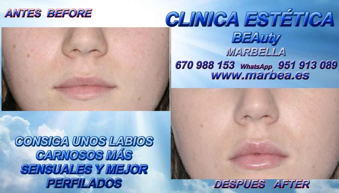 tratamiento para quitar las cicatrices del acné aumento de labios Frontera