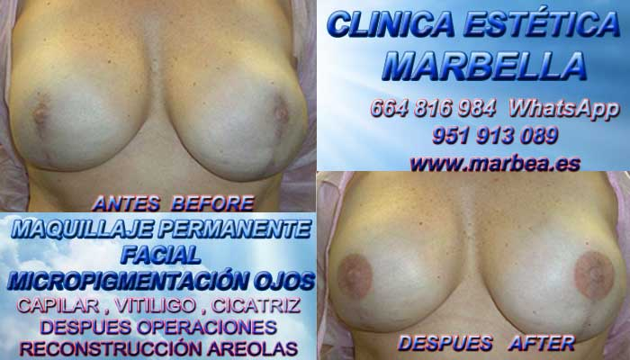 Micropigmentación de la areola Tratamiento cicatrices después de reduccion de mamas en Marbella or Antequera. Pigmentacion Marbella y en Benalmadena. Maquillaje Semipermanente Marbella y en Cádiz