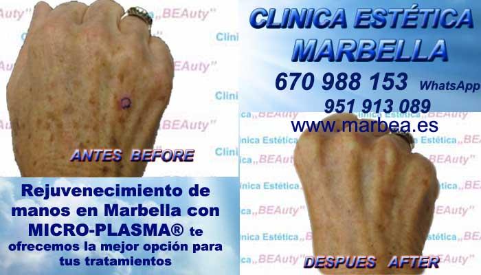 SŁOWO KLUCZOWE Manchas pigmentarias, Tratamiento de manchas y lesiones pigmentadasen Tratamiento para manchas facialesen. Eliminar lesiones pigmentadasen, Quitar lesiones pigmentadasen Marbella o Algeciras
