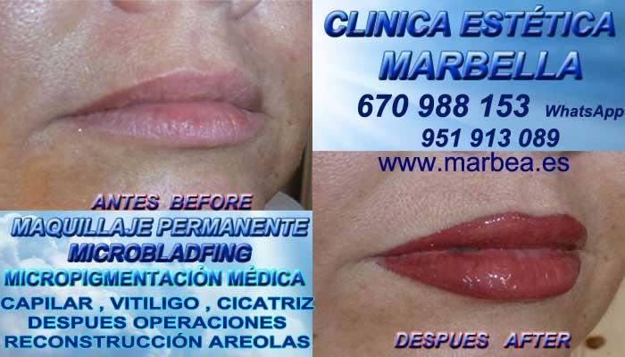 Pigmentacion labios Granada, CLINICA ESTÉTICA propone Maquillaje Permanente bocas Marbella y Granada
