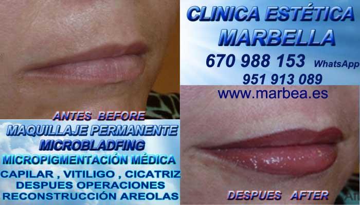 MAQUILLAJE PERMANENTE LABIOS MARBELLA CLINICA ESTÉTICA propone Tatuaje bocas en Marbella y Marbella