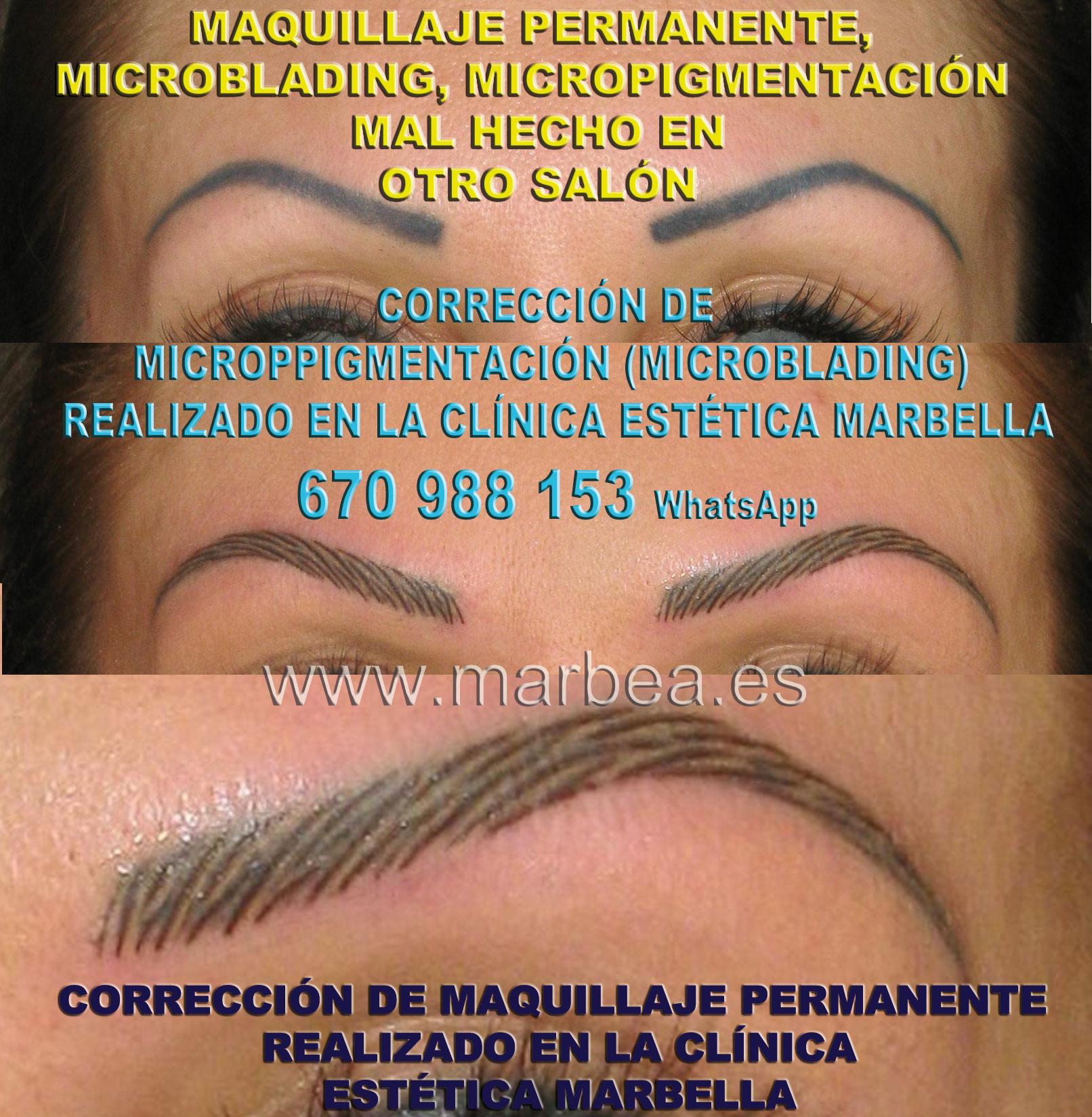 ELIMINAR LA MICROPIGMENTACIÓN DE CEJAS MAL HECHAS clínica estética tatuaje entrega eliminar la micropigmentación de cejas,reparamos microppigmentacion mal hechos en Marbella or Málaga.
