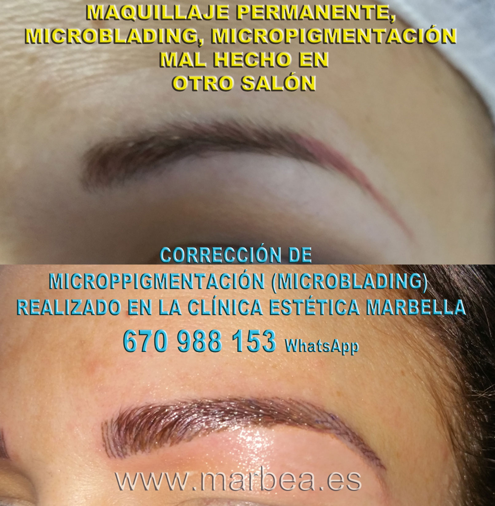 Borrar maquillaje permanente mal hecha clínica estética maquillaje permanete propone micropigmentacion correctiva de cejas,micropigmentación correctiva cejas mal hecha
