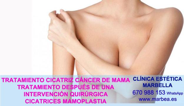 CICATRICES DESPUES DE AUMENTO DE SENOS clínica estética maquillaje semipermanente propone tratamiento cicatrices luego de reduccion de mamaria