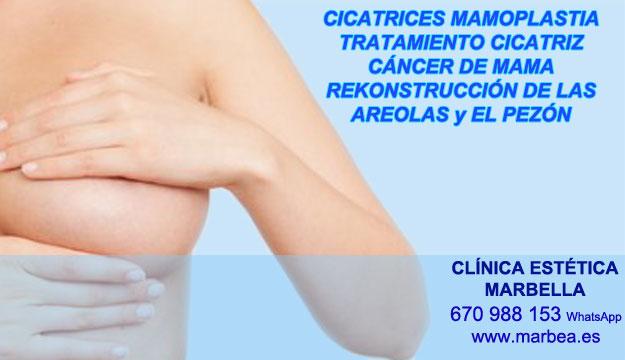 MICROPIGMENTACIÓN DE LA AREOLA clínica estética micropigmentación entrega tratamiento cicatrices post reduccion de senos