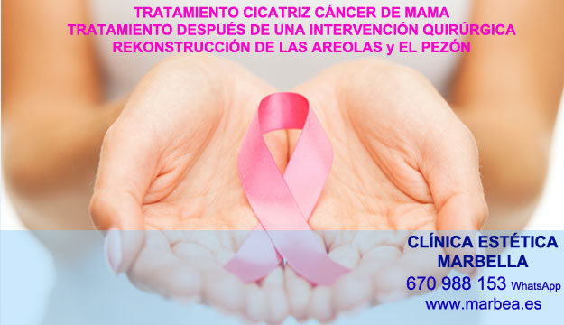 MICROPIGMENTACIÓN DE LA AREOLA clínica estética maquillaje semipermanente ofrece camuflaje cicatrices posteriormente de reduccion de mamas