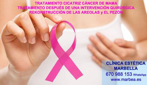 cicatrices mamoplastia Camuflaje cicatrices después de reduccion pechos en Marbella y Nerja. Pigmentacion Marbella y en Cádiz. en Microblading Marbella y en Almeria