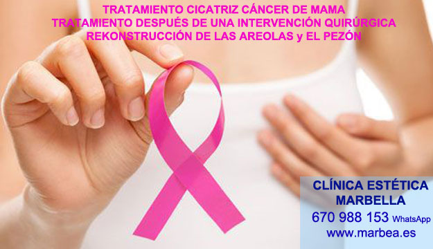 cicatrices mamoplastia Camuflaje cicatrices posteriormente de reduccion de mamaria en Marbella or Córdoba. Maquillaje Semipermanente Marbella y en Estepona. en Pigmentacion Marbella y en Estepona