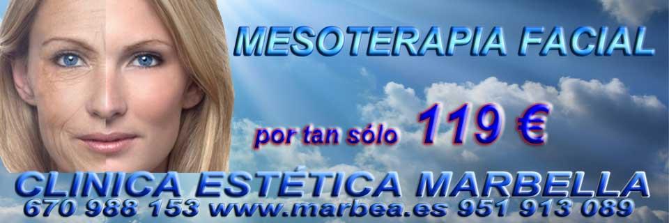 rejuvenecimiento facial Algeciras reducir para parpados caidos sin cirugia en Marbella y Algeciras