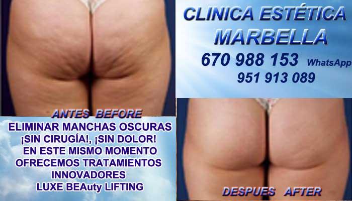 Tratamiento Para Celulitis Jaén :En la CLINICA ESTÉTICA MARBELLA te ofrecemos la alta calidad de, servicios en Marbella o Jérez