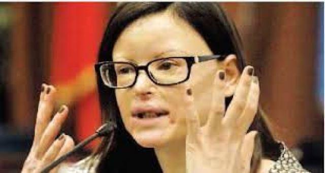 Lucia Annibali, la donna sfregiata con l'acido da due albanesi mandati dall'ex Luca Varani