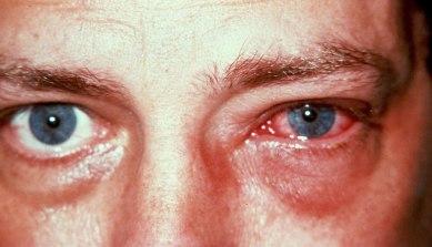 Watery eyes or conjunctivitis