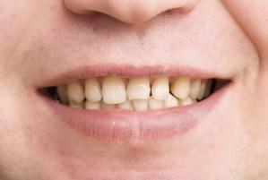 5 causes of Bad oral hygiene