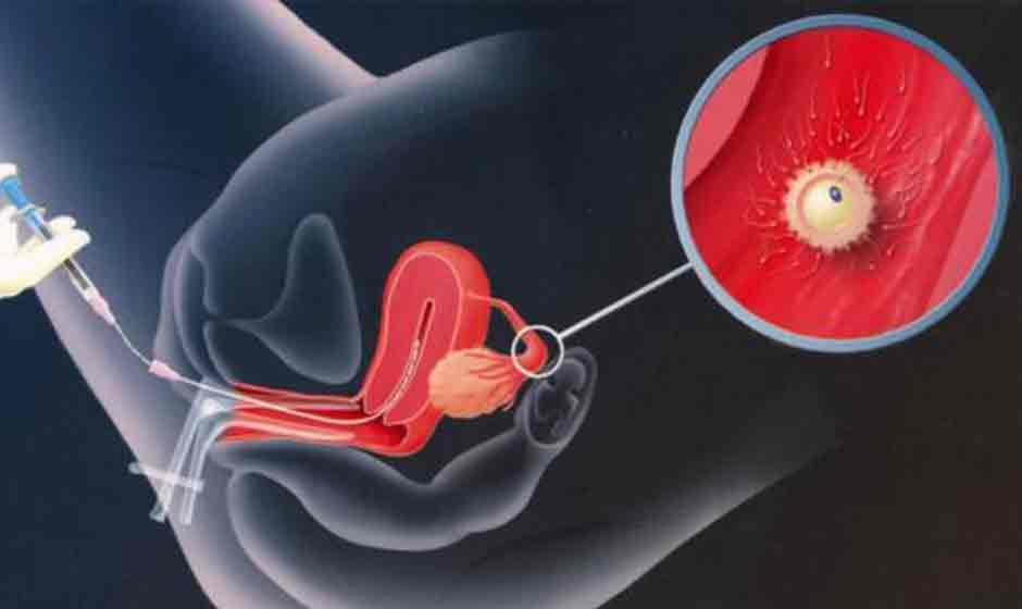 What is IVF? 5 Steps How does it work
