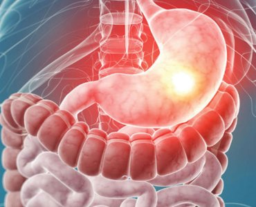 4 Causes of Gastroenteritis (Gastro)