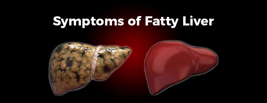 16 Common Symptoms of Fatty Liver Disease