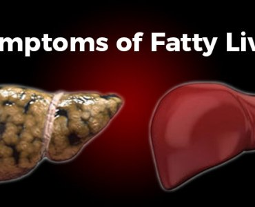 16 Common Symptoms of Fatty Liver Disease