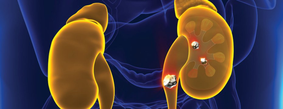 Foods That Can Cause Kidney Stones