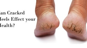 5 Guaranteed Remedies to Cure Cracked Dry Feet