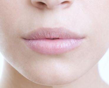 5 Natural Remedies For Chapped And Dry Lips