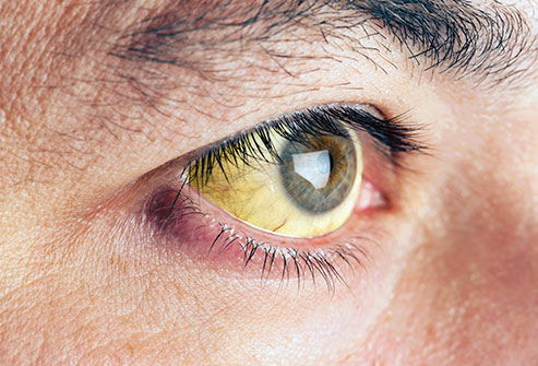 Eye yellow