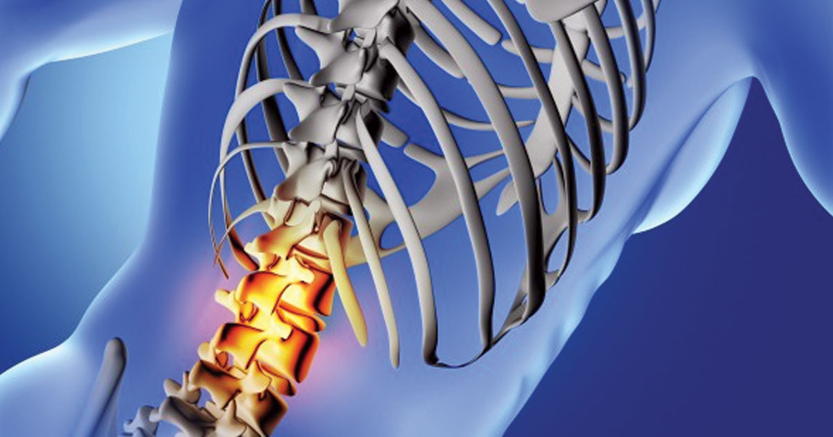 Precautions to Stay Safe from Back Ache