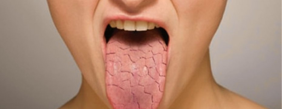 REASONS BEHIND DRY MOUTH (Xerostomia)