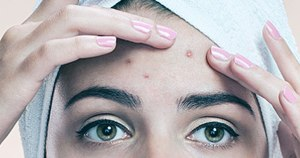5 Strategies to Control Acne Breakout