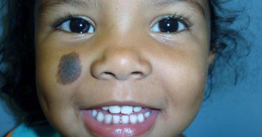 birth marks on face