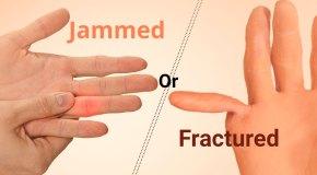 Jammed or Fractured Finger