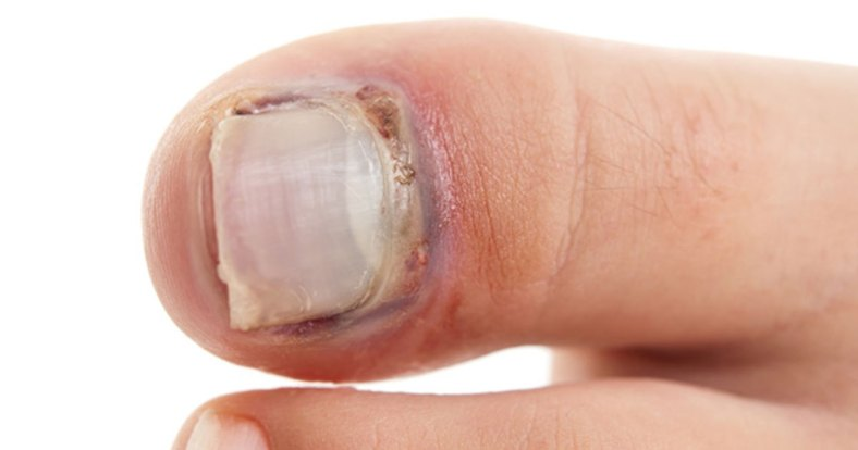 nail issues