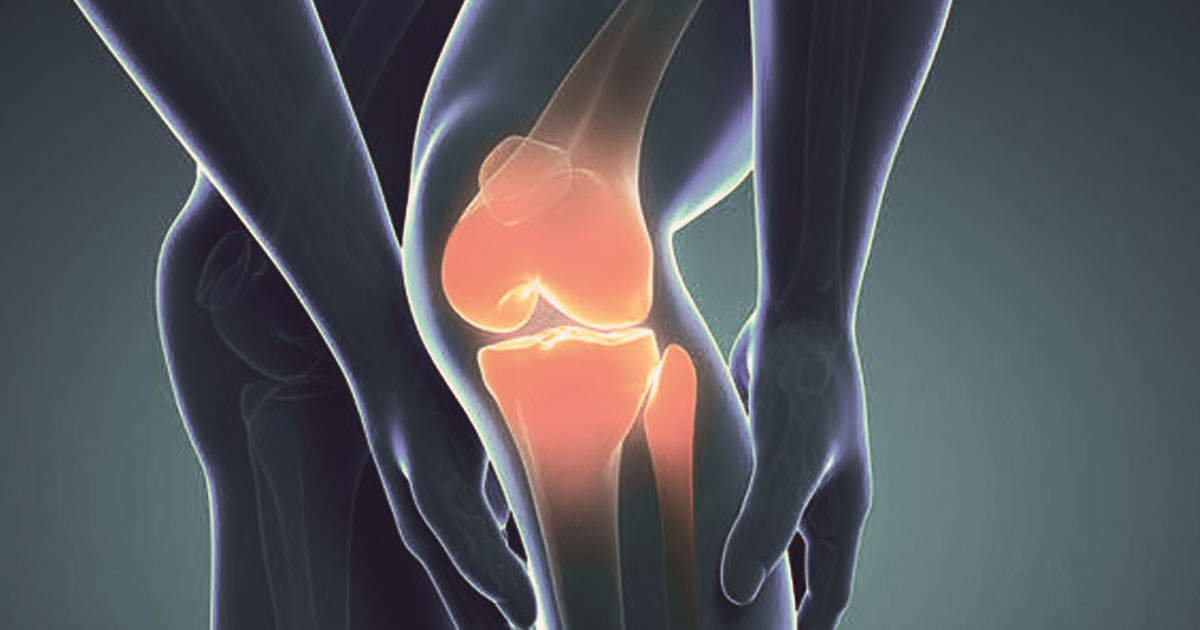 Essential Facts about Knocked-Knees