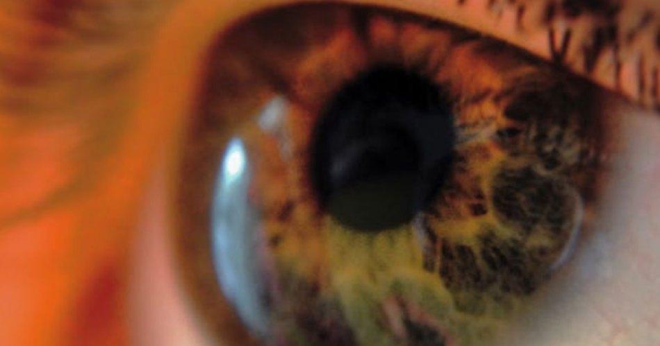 eye muddles