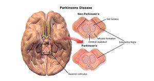 Brain changes in Parkinson's disease
