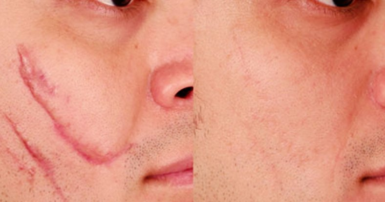 scar revision surgery