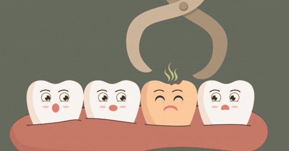 surgical extraction of wisdom tooth