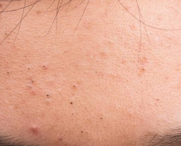 6 Treatment Options to Get Rid of Blackheads