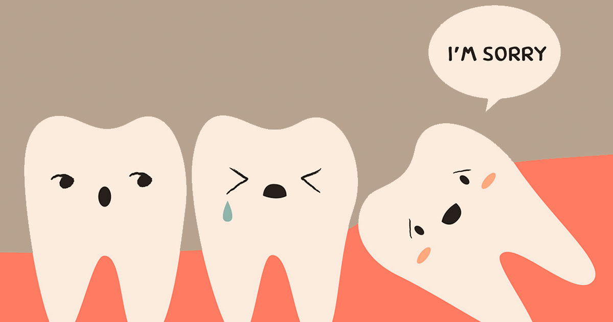How Much Do You Know about Your Wisdom Tooth?