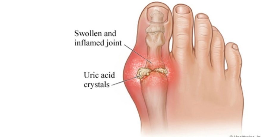 uric acid level