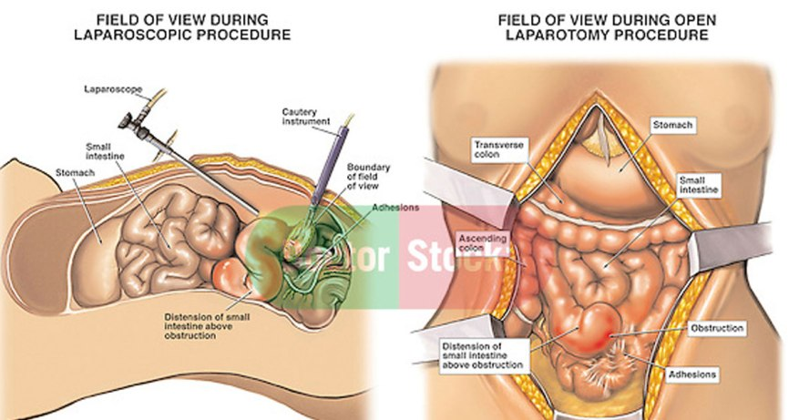 cysts in ovary