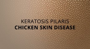 Everything You Need to Know About Chicken Skin Disease