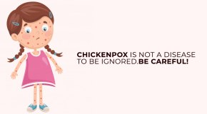 Chickenpox and remedies
