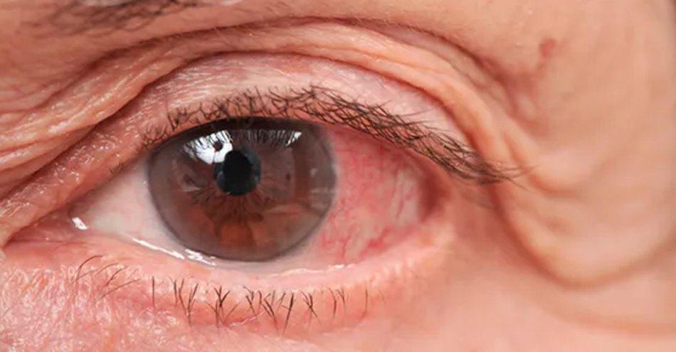 diabetes eyes