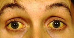 jaundice and it's symptoms
