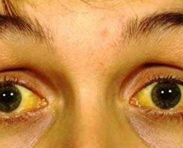 jaundice and it's symptoms